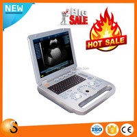 Portable Ultrasound Scanner Veterinary Pregnancy with Multi-frequency Mechanical Sector Probe for Small & Large Animals
