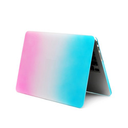 2016 New Products Hard Case for Macbook Pro Laptop Skin Case for Girls