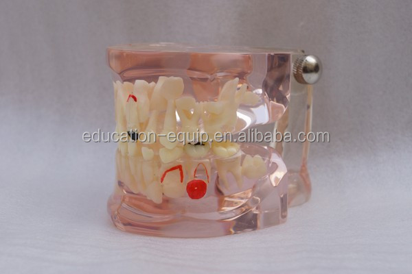 SE311078 Clear Mixed Dentition Age Model with Caries