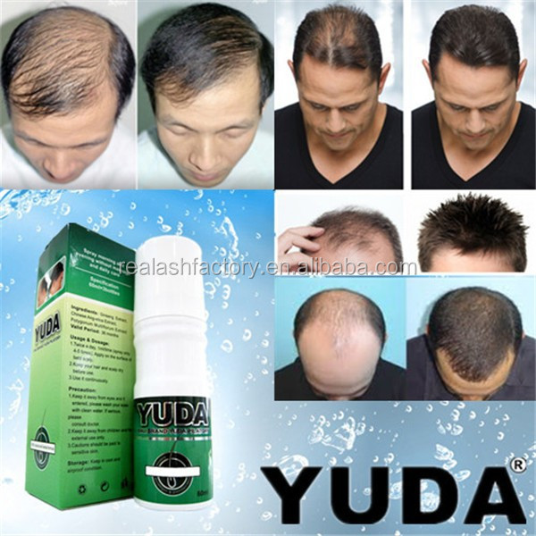 YUDA faster hair growth products/hair loss vitamins/hair growth supplement Real Plus factory produces