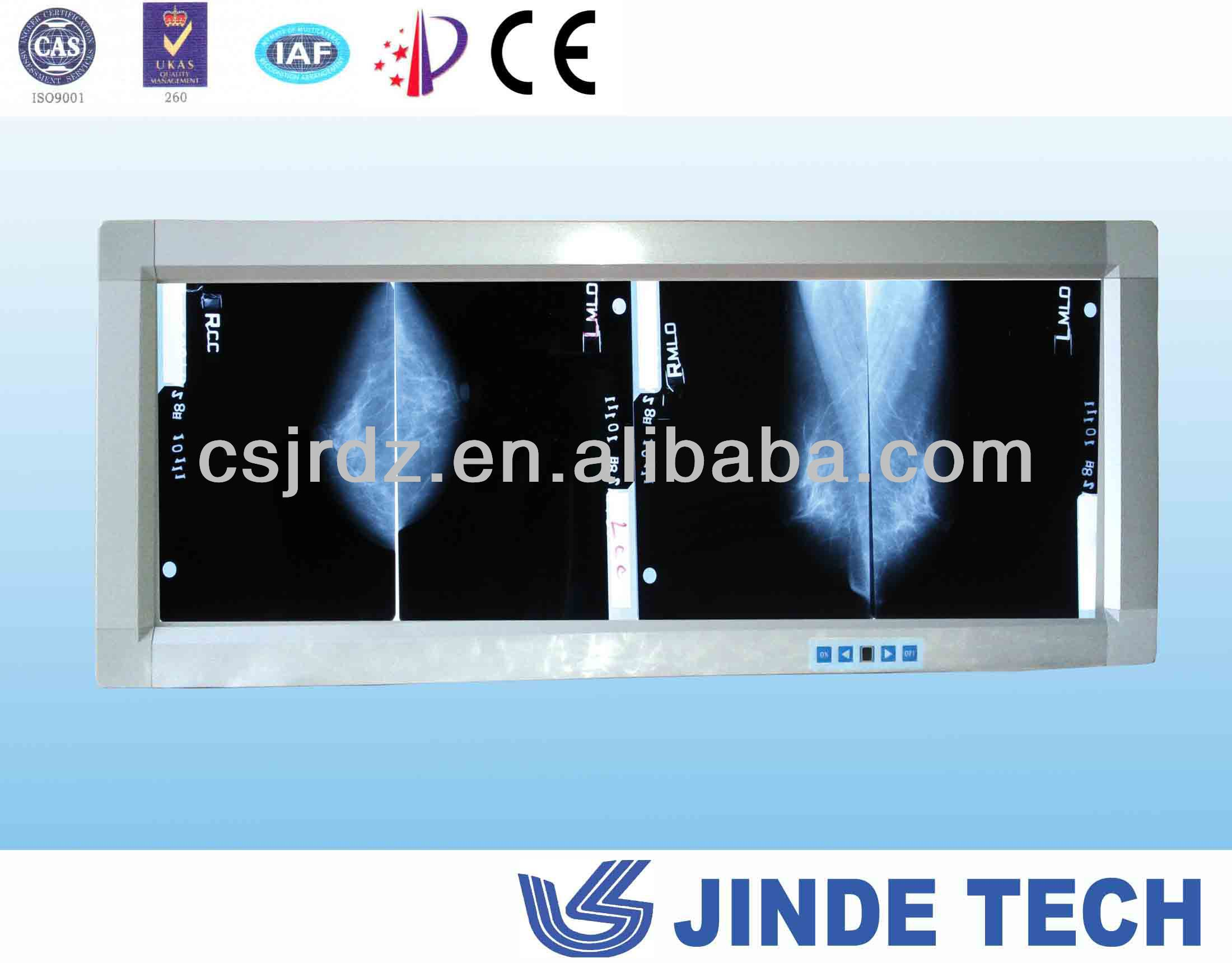 Observe light for Mammography x ray workshop view box, good film viewer, negatoscope
