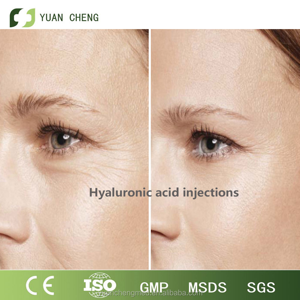 1ml Yuancheng High Quality Anti-Aging Dermal HA Filler|Sodium Hyaluronate For Crow's Feet
