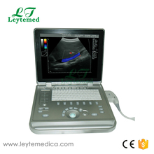 LTC5 medical clinic Full Digital Laptop Doppler Color Ultrasound Scanner