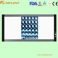 three screen led x-ray film viewing box