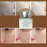 Retinol Dark Spot Pigmentation Cream For Beauty Face