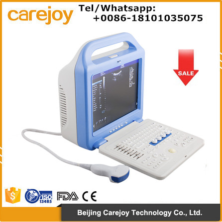 Portable Full Digital Color Doppler Ultrasound Scanner Diagnostic System 2 Probe with convex probe and transvaginal probe
