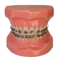 Buy acylic dentures/acrylic tooth/denture teeth for sale in China ...