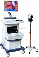 full hd vagina colposcope / Digital Laptop Colposcope Work Station /colposcope camera/