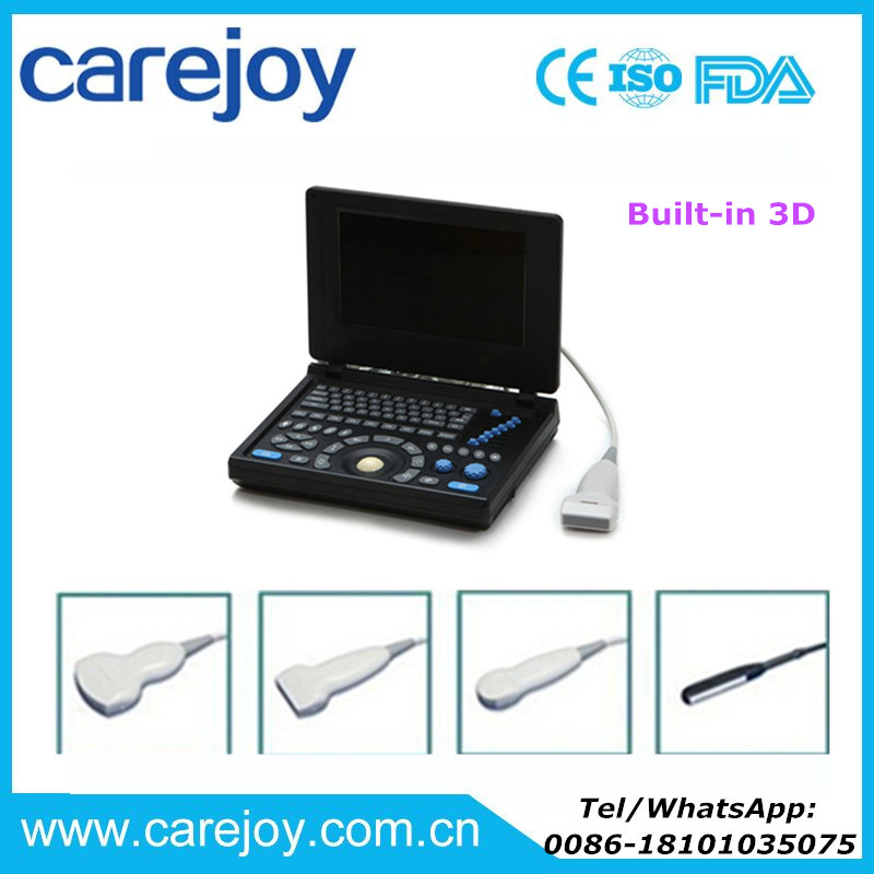 Ultrasonic Laptop type Ultrasound Scanner/machine with Multi-frequency probe with Aluminum box and battery