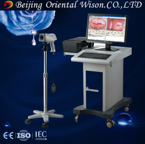 digital imaging system beautiful vagina colposcope camera for sale