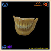 medical learning model permanent teeth plastinating to order
