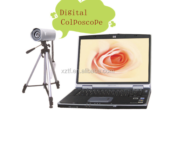 vagina medical equipment Portable Digital Camera Colposcope TF-6001