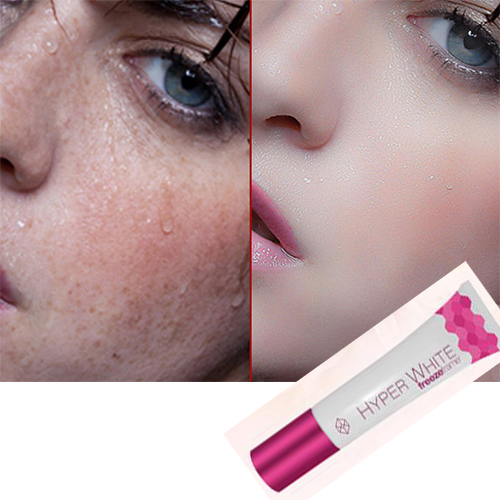 Spot Removing Face Skin Whitening Cream For Face