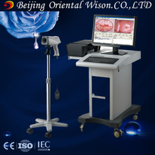 cold laser medical colposcope digital imaging system camera ccd sony colposcope