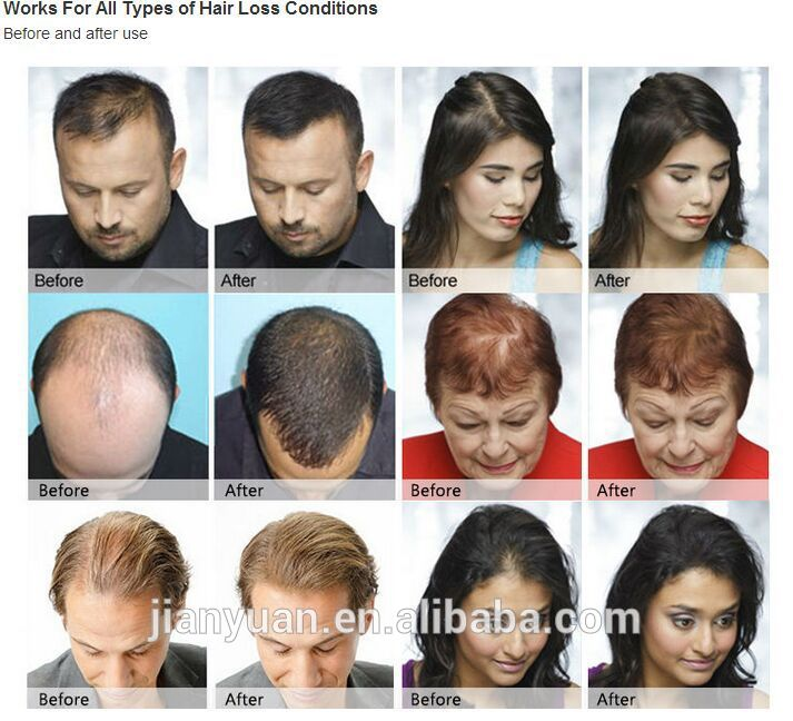 2015 Keratin Hair Building Fibers Bulk Wholesale Buy