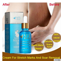 OEM Natural Best Pregnancy Stretch Mark Removal Creams For Anti Stretch Marks Cream
