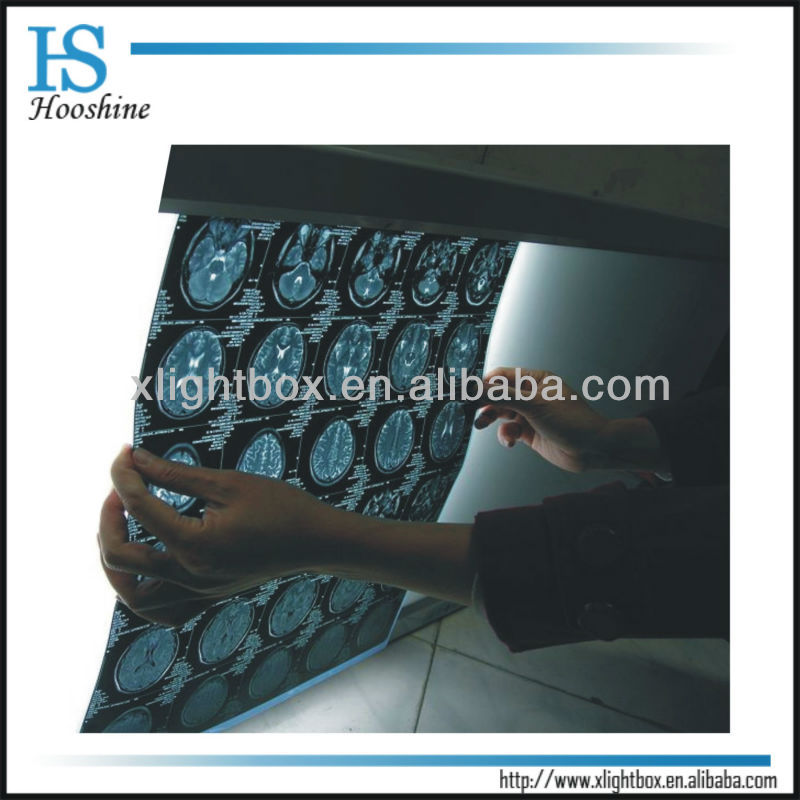 X Ray film viewer/MEDICAL MACHINE