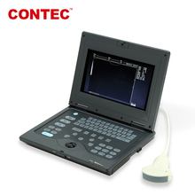 CMS600P Palm size laptop Medical Ultrasound scanner Diagnostic Ultrasonic Machine CE Approved