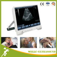 Good Price Portable Ultrasound Machines 15'' Touch Screen -WELLC06