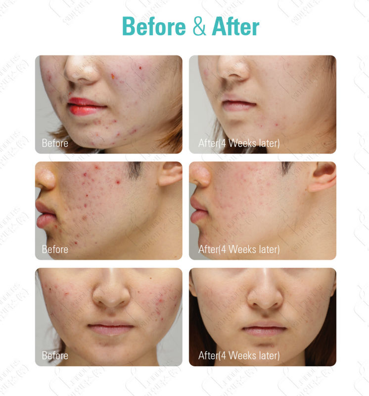 before and after pictures using olive oil on skin ozein ...