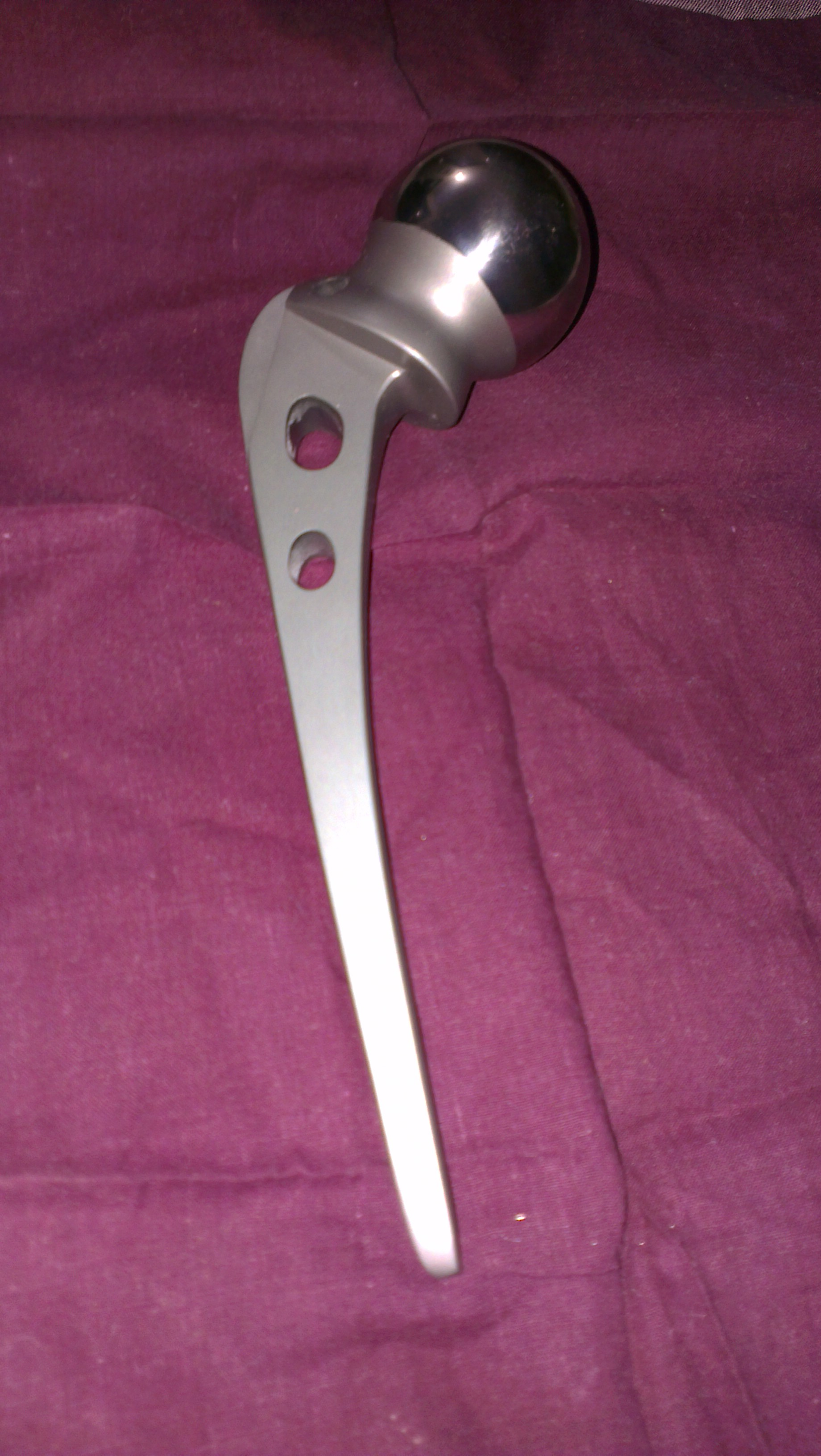 pregnant prothesis Pregnancy after amputation volume 10 number 4 july/august 2000 by zahra meghani   the couple married and soon afterward, mary became pregnant.