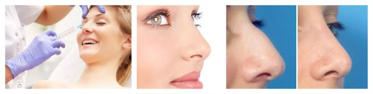 1ml Cross-linked hyaluronic acid filler for face beauty