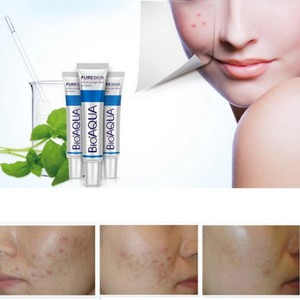 Skin Care Acne Treatment Face Care Acne Scars Cream Anti Acne Removal Gel Whitening Moisturizing Cream 30g