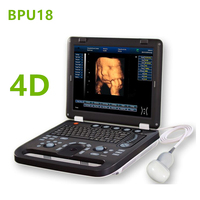 Low Price Laptop 4D Portable Ultrasound Machine/Ultrasonic Scanner/Echo machine