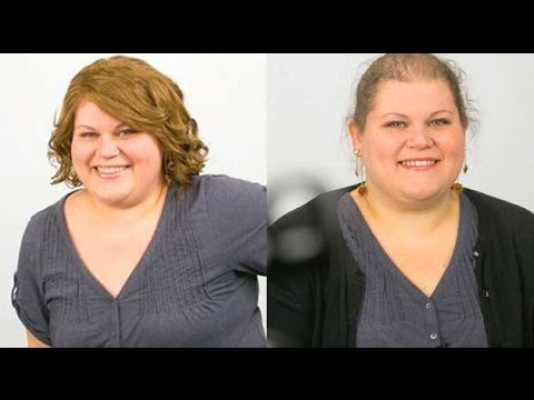 Get Quotations Hair Loss After Weight Truth About Bariatric Surgery
