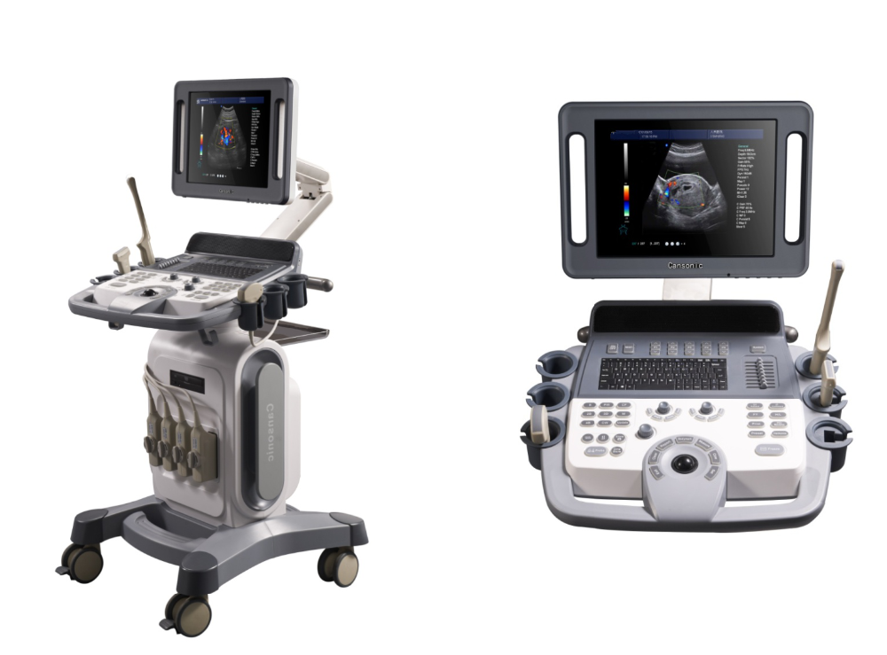 4D Color Doppler Ultrasound Price Trolley Type