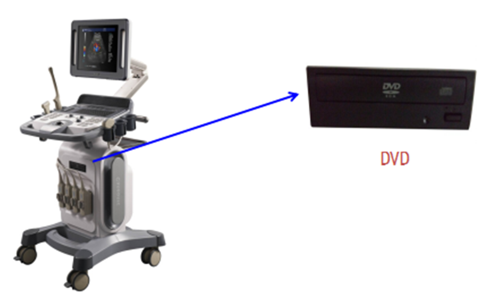 Cheap Portable 4d Color Doppler Ultrasound Price Trolley Type