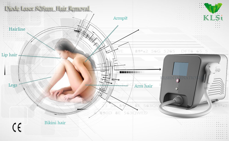 lease laser hair removal machine