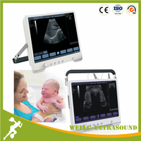 Touch Screen Cheapest Portable Ultrasound Machine,Mini Laptop Ultrasound Scanner-WELLC06