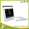 B model Touch Screen Portable Ultrasound Machine /ultrasound scanner price-WELLC06