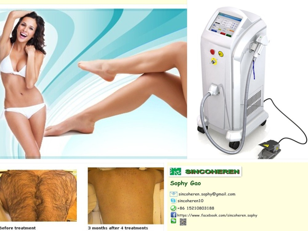 epilasyon aletleri lumenis lightsheer/808nm diode laser beauty equipment medical ce, fda,tga