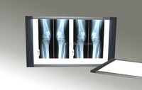 Medical X-ray view box / Watching light