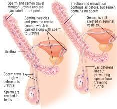 uvelicheniya-obema-spermi
