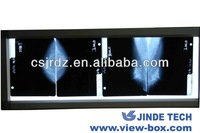 good quality JD-01R x ray Mammography with CE certificate film viewing box manufacturer