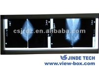 the new design LED x-ray Mammography viewer