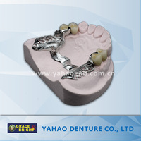 Denture/Dental Casting Metallic/Metal Partial Frame