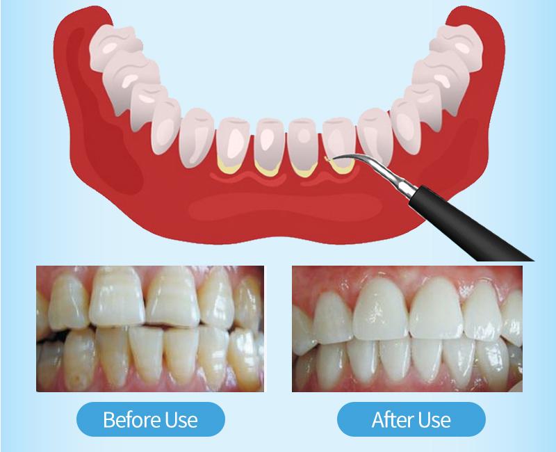 Portable piezo air vrn cavitron woodpecker electric led handpiece dental tartar plaque calculus remover ultrasonic dental scaler