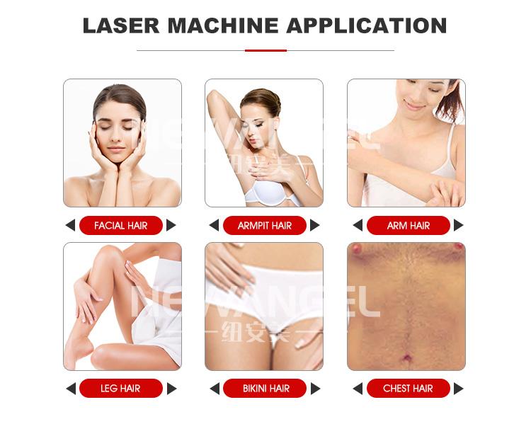 Più nuovo 3 lunghezza d'onda 808nm diodo laser macchina di rimozione dei capelli