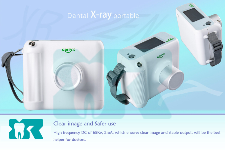 Manufacturer 0.4mm Focus Spot New Digital Portable X Ray Dental Machine