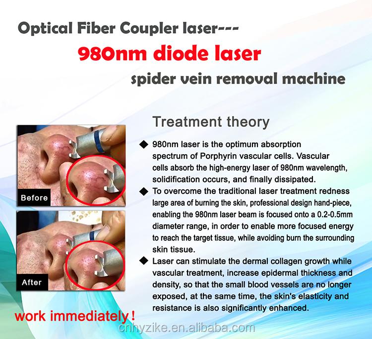 전문 30W 거미 정맥 제거 980 다이오드 혈관 레이저 기계 다이오드 레이저 980nm