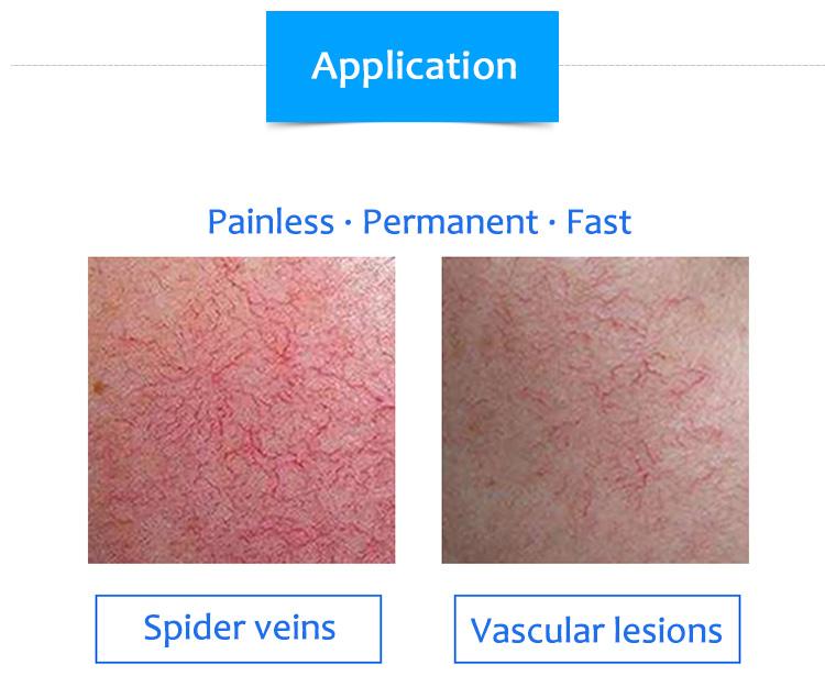 רפואי 980 עכביש וריד כלי דם הסרת לייזר/כלי דם נגעים הסרת דיודה לייזר 980nm להסיר רגל ורידים