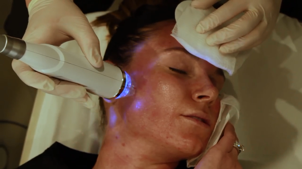 Face lift cura della pelle microneed RF macchina della pelle microdermoabrasione Macchina di uso del salone di diamante microdermoabrasione