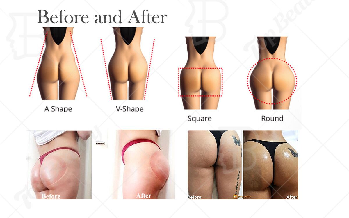 Vacuum Therapy Lymphatic Drainage Slimming Buttocks Lifting Machine Pulsed Suction and Continuous Suction