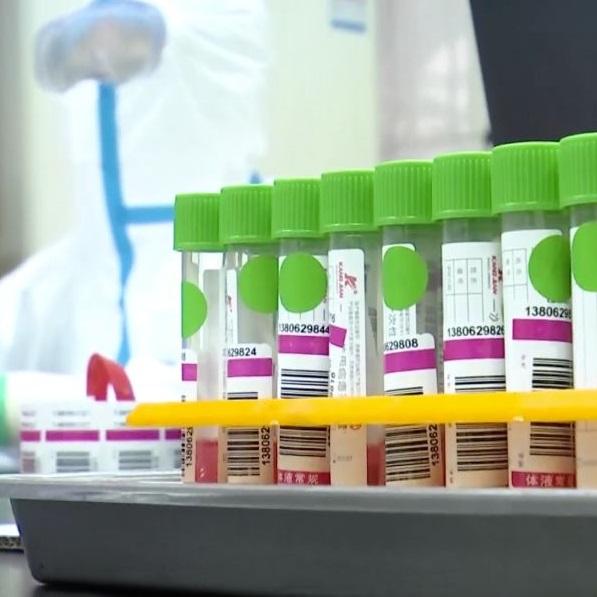Samples collection set tube and flock swab oral nasal swabs test storage