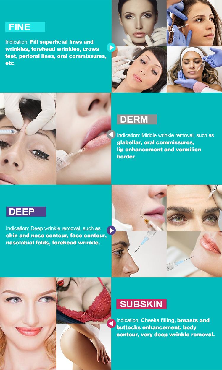 Supply คุณภาพสูงส่งออกเกาหลี Hyaluronic Acid dermal Face FILLER 1ml Lip FILLER ฉีด