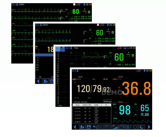 Aurora 12S Monitor de pacientes semimodular multiparâmetro de sinais vitais médicos de 12,1 polegadas para UTI
